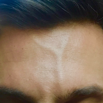 35-44 year old man treated for forehead veins with sclerotherapy and microphlebectomies. before 3087220