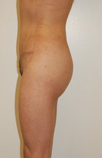 buttock Augmentation after 333751