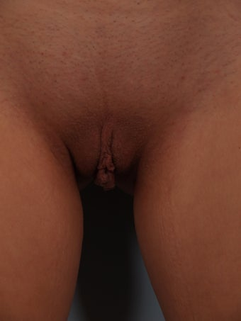 Labiaplasty before 715577