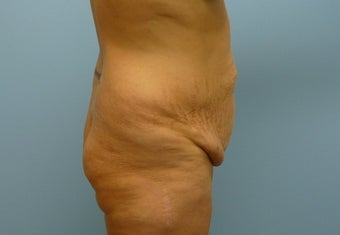 Tummy Tuck 43-year-old female 917815