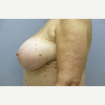68 year old woman treated with Breast Implant Removal and mastopexy 1675017