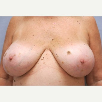 68 year old woman treated with Breast Implant Removal and mastopexy before 1675017