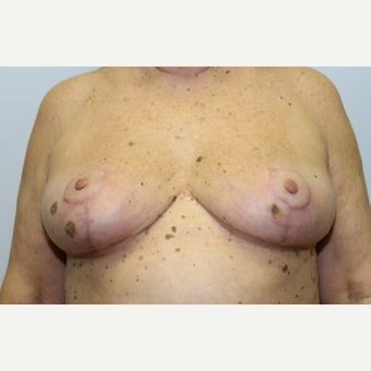 68 year old woman treated with Breast Implant Removal and mastopexy after 1675017