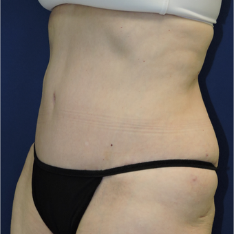55-64 year old woman treated with Tummy Tuck after 3747397
