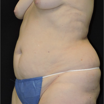 55-64 year old woman treated with Tummy Tuck before 3747397