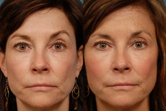 Sculptra before 407011