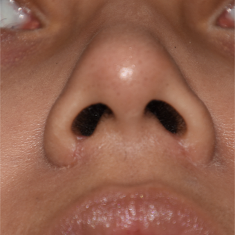 25-34 year old woman treated with Nostril Narrowing after 3161137