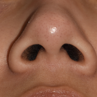 25-34 year old woman treated with Nostril Narrowing before 3161137
