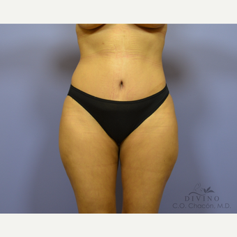35-44 year old woman treated with Tummy Tuck after 3415683