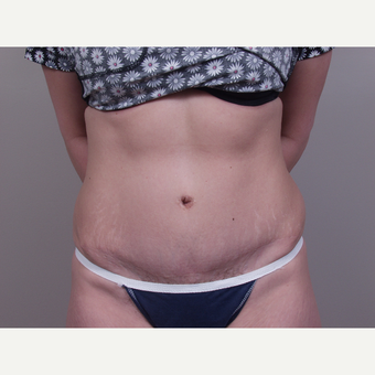 45-54 year old woman treated with Tummy Tuck after 3142099