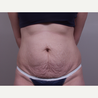 45-54 year old woman treated with Tummy Tuck before 3142099