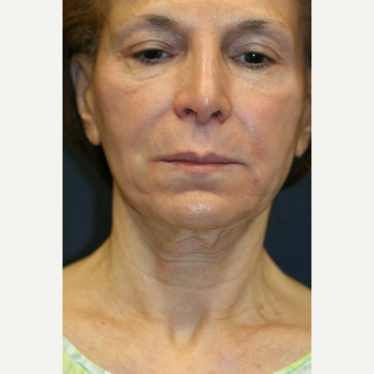 69 year old woman treated with Laser Treatment before 2936239