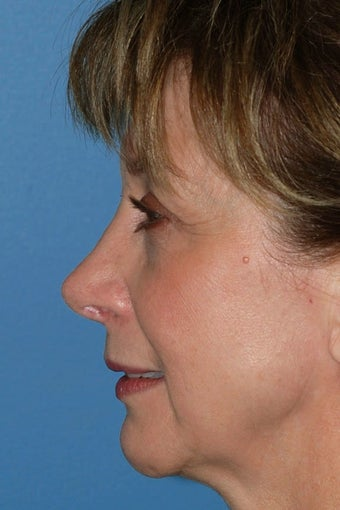 Revision Rhinoplasty after 68971