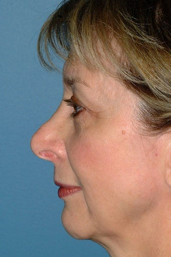 Revision Rhinoplasty before 68971