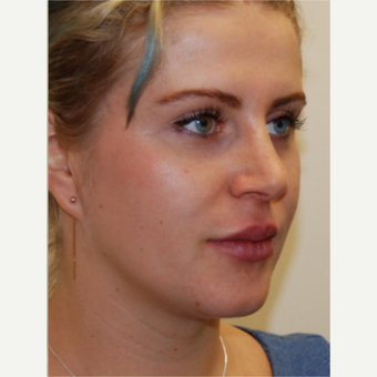 25-34 year old woman treated with Rhinoplasty and permanent Lip Augmentation. after 3742310