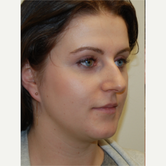 25-34 year old woman treated with Rhinoplasty and permanent Lip Augmentation. before 3742310