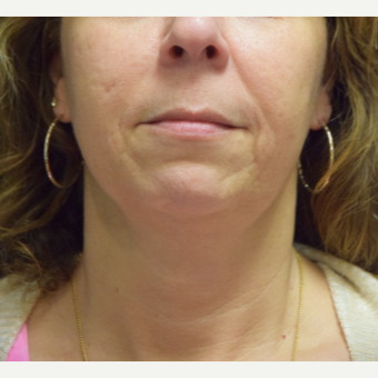 55-64 year old woman treated with Ultherapy before 3376362