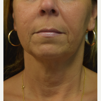 55-64 year old woman treated with Ultherapy after 3376362