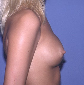 Secondary Breast Augmentation  (Implant Replacement) before 471702
