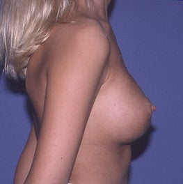 Secondary Breast Augmentation  (Implant Replacement) after 471702