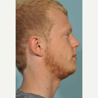 18-24 year old man treated with Chin Surgery after 3236998