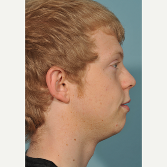 18-24 year old man treated with Chin Surgery before 3236998
