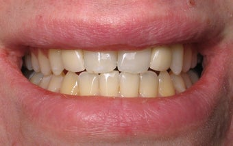 Dental Implants to Replace Missing Teeth after 264191