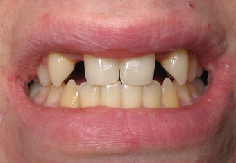 Dental Implants to Replace Missing Teeth before 264191