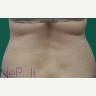 45-54 year old woman treated with SculpSure after 2813742