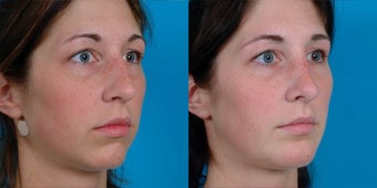23-year-old woman treated with Rhinoplasty. after 3287757