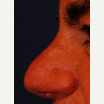 55-64 year old man treated with Laser Resurfacing after 3624560