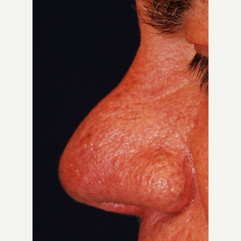 55-64 year old man treated with Laser Resurfacing before 3624560