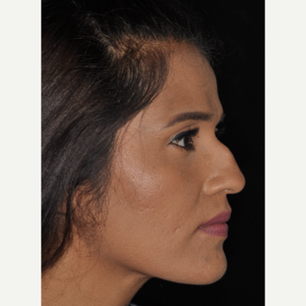 25-34 year old woman treated with Nose Surgery 10 days post-op before 3452321