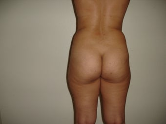 23 year old female treated with Brazilian butt lift before 965457