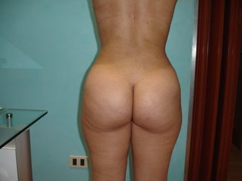 23 year old female treated with Brazilian butt lift after 965457