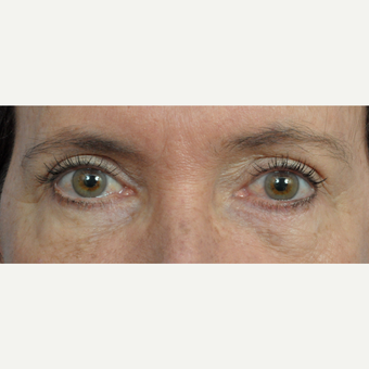 45-54 year old woman treated with Eyelid Surgery after 3453876