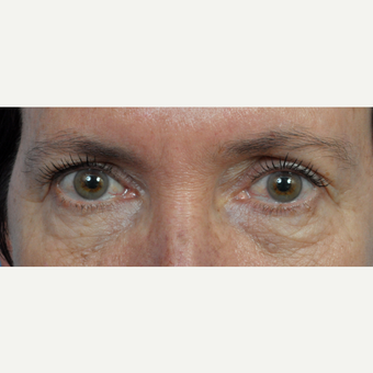 45-54 year old woman treated with Eyelid Surgery before 3453876