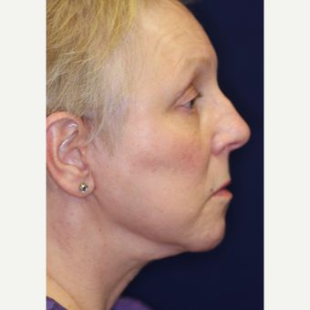 55-64 year old woman treated with Facelift after 3070846