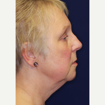 55-64 year old woman treated with Facelift before 3070846