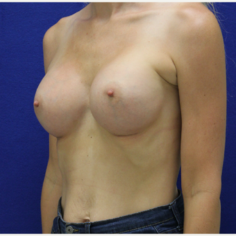 18-24 year old woman treated with Breast Augmentation after 3383391