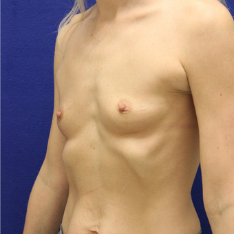 18-24 year old woman treated with Breast Augmentation before 3383391
