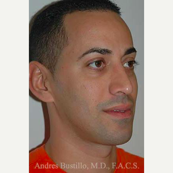 37 year old man treated with Rhinoplasty after 3462317