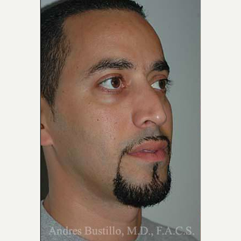 37 year old man treated with Rhinoplasty before 3462317