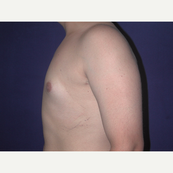 35-44 year old man treated with Male Breast Reduction after 3765987