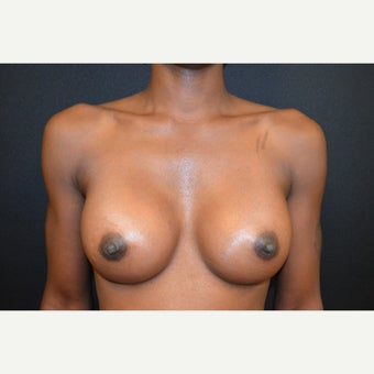 35-44 year old woman treated with Breast Augmentation after 1645670