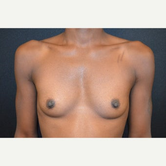 35-44 year old woman treated with Breast Augmentation before 1645670