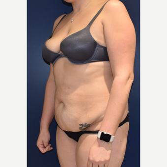 35-44 year old woman treated with Tummy Tuck before 3489827