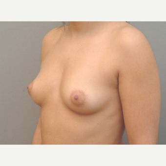 25-34 year old woman treated with Breast Implants before 3732149