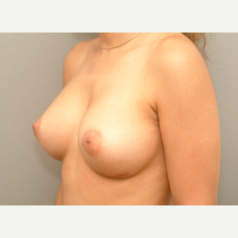 25-34 year old woman treated with Breast Implants after 3732149