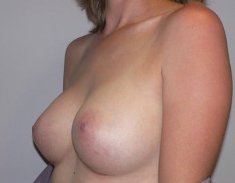 Breast Augmenation 943769